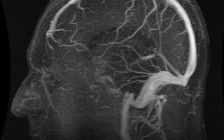 Запањујући резултати истраживања: Молитва исцјељује људски мозак